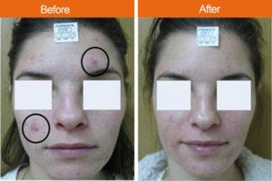 acne 1